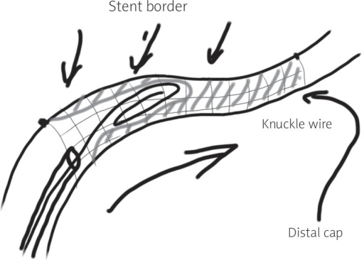 Schematic of the knuckle wire positioning within ISR CT