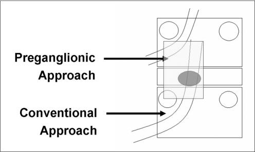 Safe triangle transforaminal epidural steroid injection