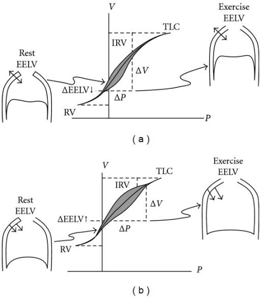Pressure-Volume (P-V) relationships of the total respir
