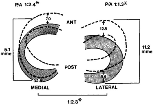 Diagrams showing the mean movement (mm) in each meniscu
