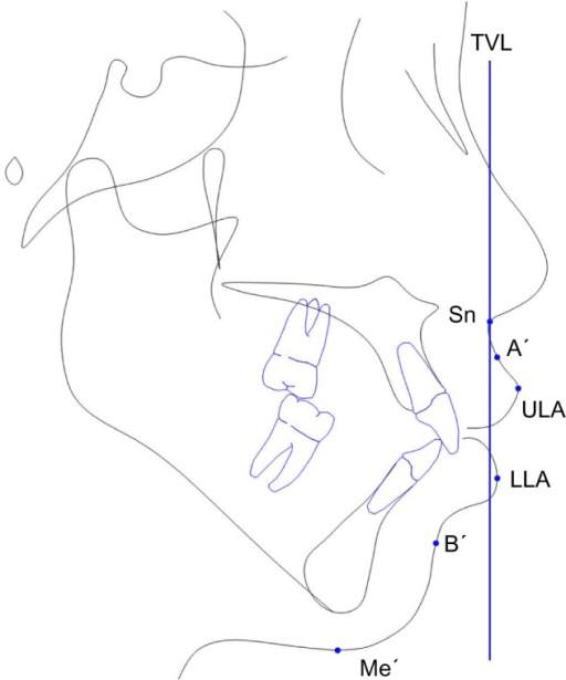 Soft tissue projections from TVL.Abbreviations: Sn, sub