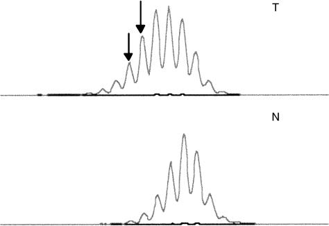Microsatellite instability analysis in gastric carcinom   Open-i