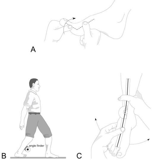 Figure 7:Efficacy of a multifaceted podiatry intervention