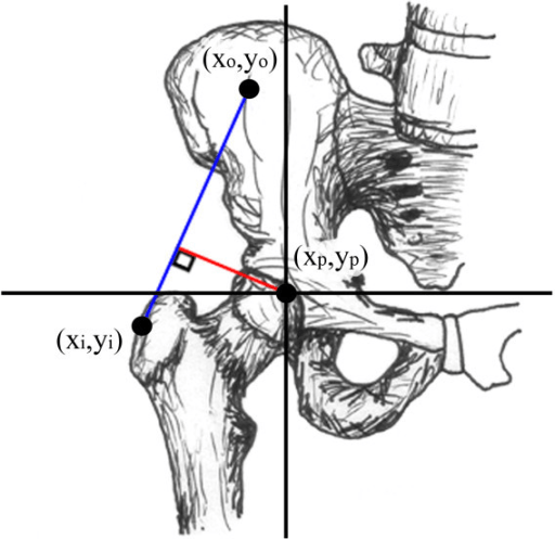 Coronal view of hip demonstrating hip abductor moment a