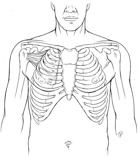 fig3-1941738111403113:Subscapularis Strain From Swinging a
