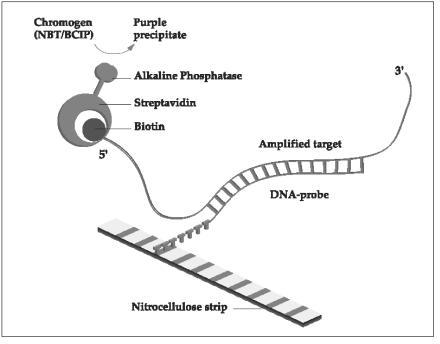 Example of line probe assay (LiPA) detection system based