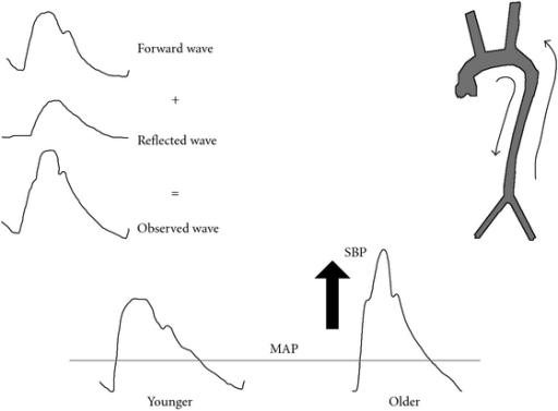 fig1:Vascular Stiffness and Increased Pulse Pressure in