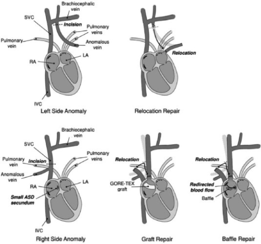 Surgical approaches for correcting PAPVR. For anomalous