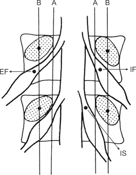 Figure 1:Position of dorsal root ganglia in the
