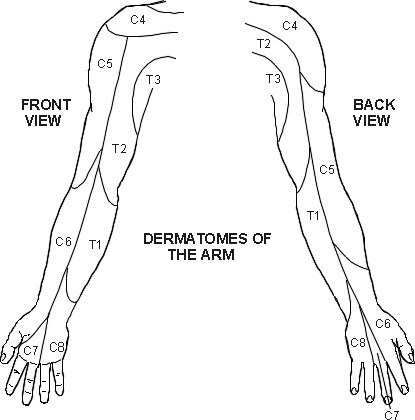 Upper Extremity Dermatomes. (Permission granted by PILs