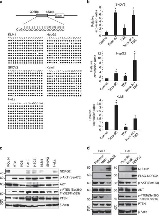 Downregulation of NDRG2 is associated with enhanced pho