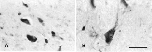 pone-0014430-g008:Carbocyanine Dye Usage in Demarcating
