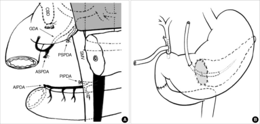 Schematic diagram of the pancreas head resection with s