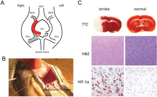 carotid artery diagram 1987 delco radio wiring the intraluminal filament rat mcao stroke model(a) stru | open-i