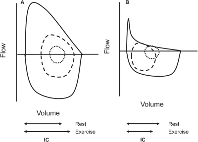 Maximum and tidal flow-volume curves in subjects with a