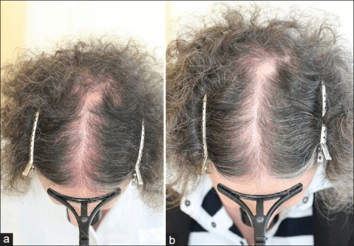 A And B Red Scalp Syndrome Before And After 6 Months