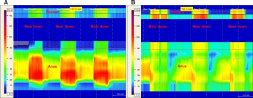 Colored pressure topography plots of anorectal pressure