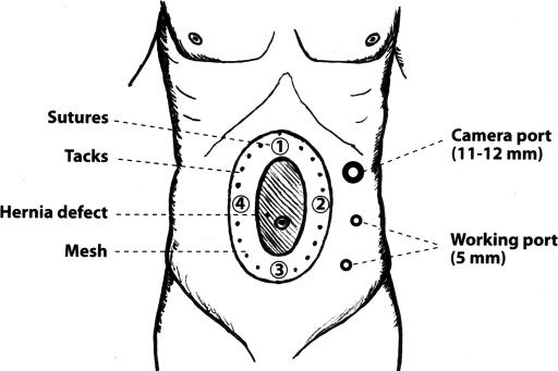 Figure 1:Laparoscopic Ventral Hernia Repair: Pros and Cons