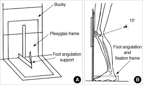 Figure 1:The Prevalence of Knee Osteoarthritis in Elderly