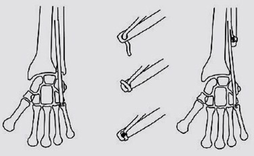 The Extensor Carpi Ulnaris tenodesis technique. Reprodu