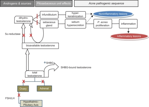 hormonal acne diagram holley 4 barrel carburetor androgens in pathogenesis and the countervailing e open i effects of combined oral contraceptives ocs