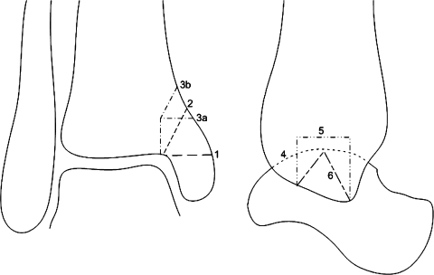 Anteroposterior (left) and lateral (right) drawings of