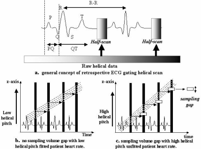 Reconstruction procedure with retrospective ECG-gating