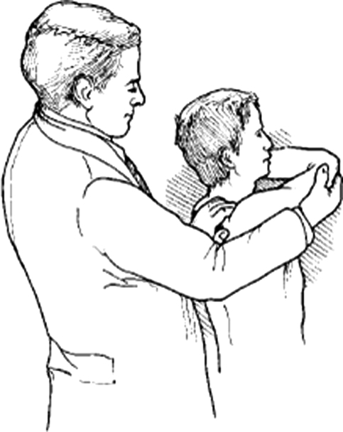 Fig4:Surgical treatment for acromioclavicular joint