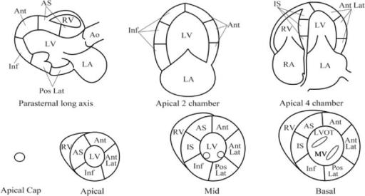 Segmental model for regional wall motion analysis. The