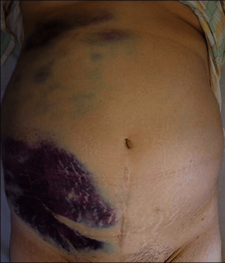 An ecchymosis in the right flank and lower abdominal ar ...