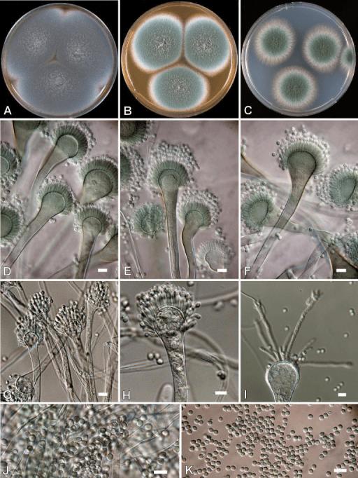 Aspergillus fumigatus AC Colonies 7 d 25 C A CYA