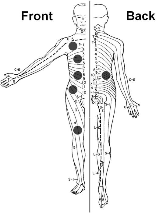 Dermatomes of measurement for quantitative sensory test