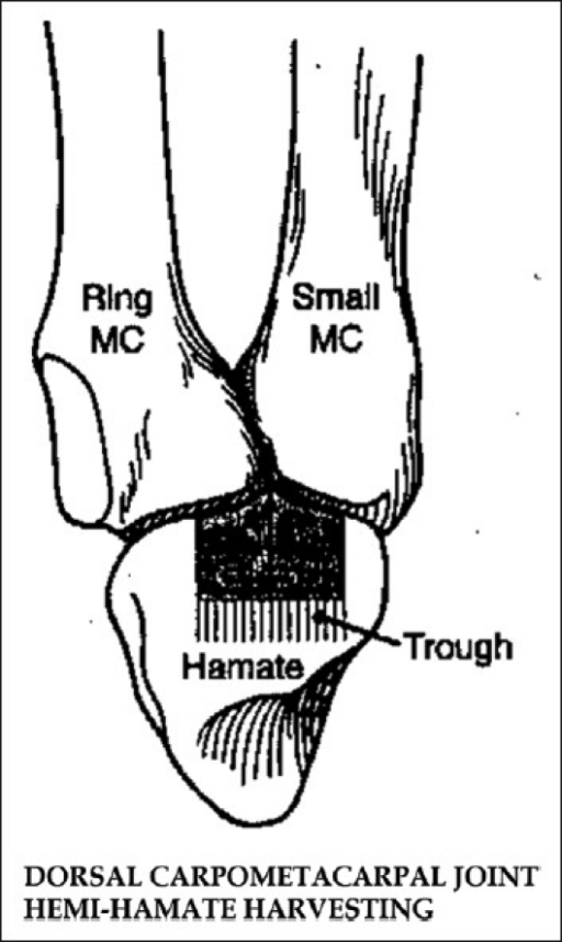 Figure 6:Hemi-hamate arthroplasty for pilon fractures of