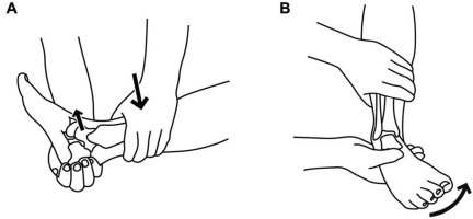 Figure 4:Diagnosis and treatment of acute ankle injuries