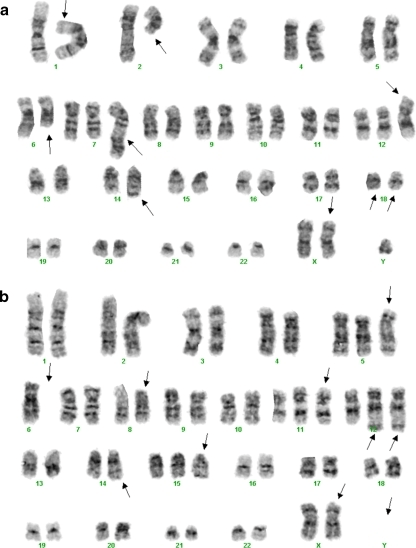 Cytogenetic analysis of the patient's B cell lymphomas