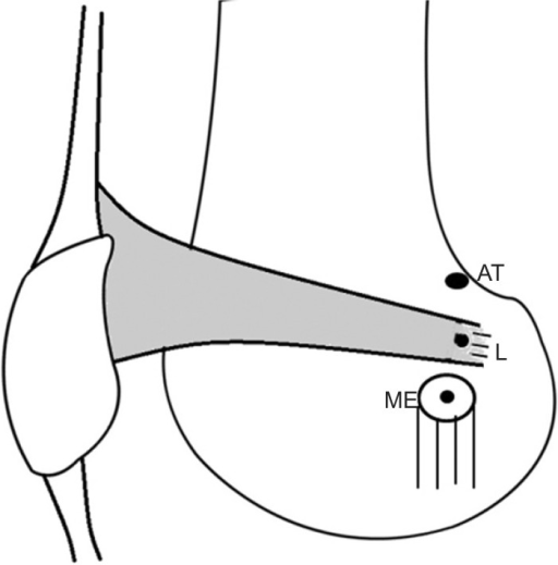 The relationship of the medial patellofemoral ligament