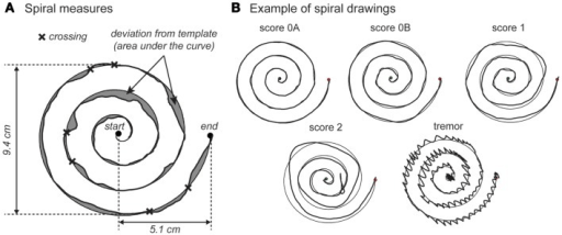 Examples of spiral-drawing quantification and clinical