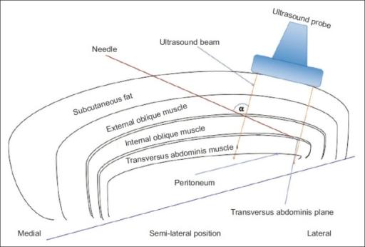 Line diagram depicting the ultrasound-guided transversu