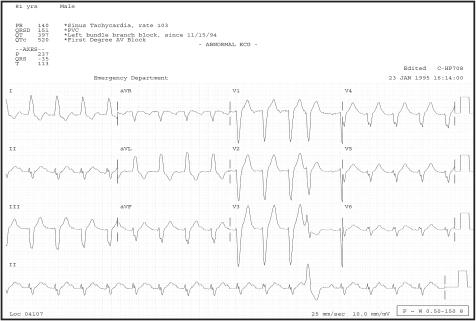 f6-wjem-9-0028:Wide Complex Tachycardias: Understanding