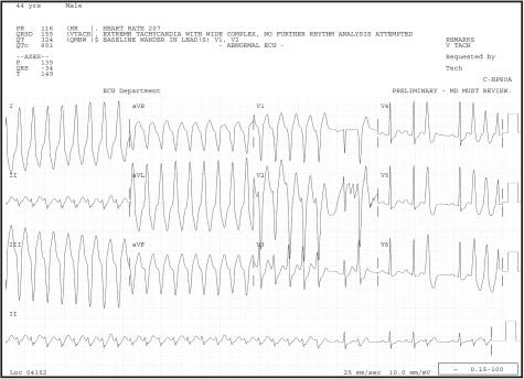 f9a-wjem-9-0028:Wide Complex Tachycardias: Understanding