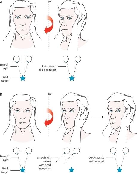 Head impulse test. A: The right ear has intact peripher