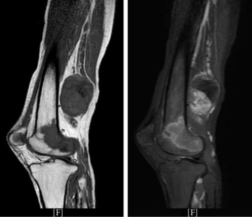 Urgent MRI of the right lower limb T1 weighted left
