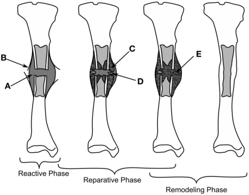 The healing of a tibial fracture. A hematoma (A) forms