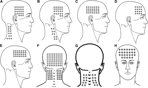 Fig2:Referred pain from myofascial trigger points in head