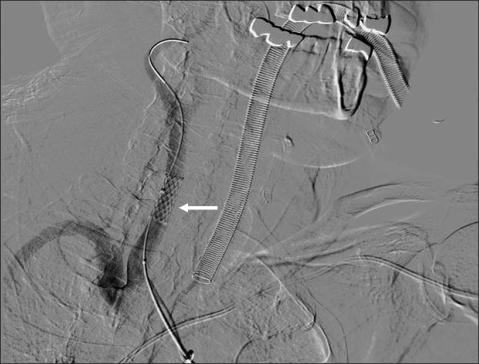 Carotid Artery: Carotid Artery Laceration