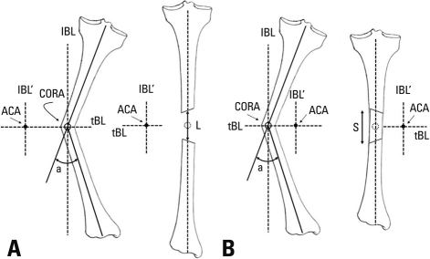 ACA-CORA Rule 1. If the ACA is located on the concave s