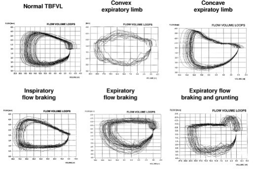 Figure 2:Differences in tidal breathing between infants