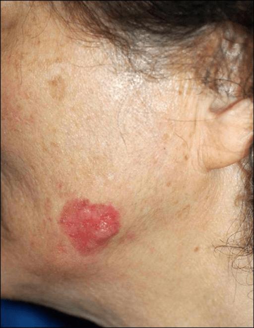 The erythematous nodule based on an irregular shaped ...