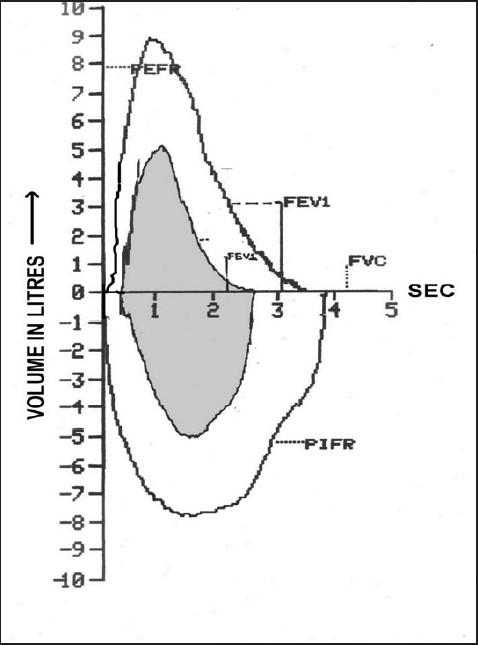 Representative flow volume loop showing gross derangeme