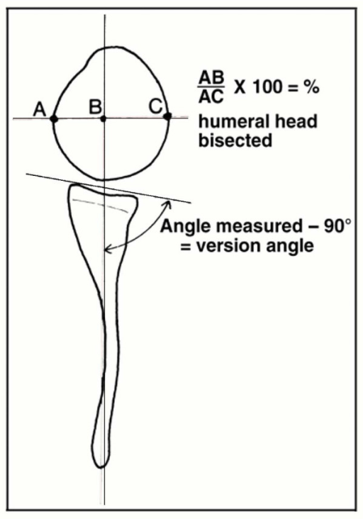 Schematic drawing showing the method of measuring the g